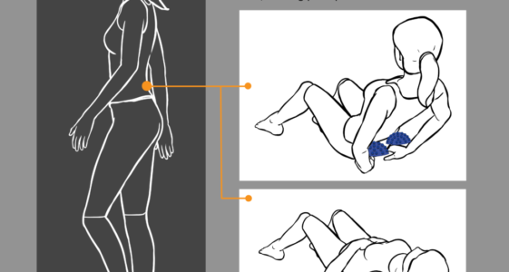 Conquer Sciatic Pain in Under Ten Minutes a Day   How to Treat Sciatica With Wave5